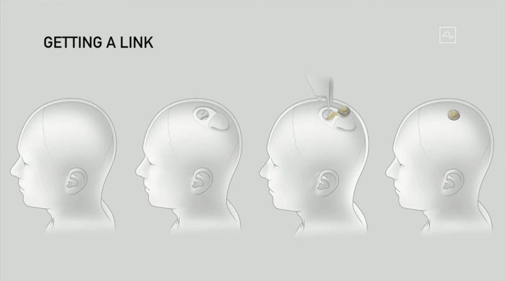 画像挿入 Neuralinkのチップの埋め込み方